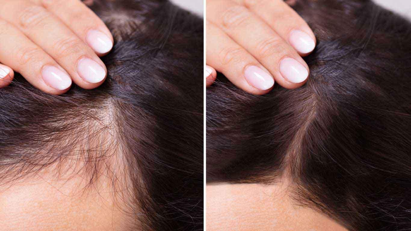 hair shedding vs. hair loss
